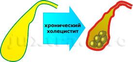 При длительно существующем хроническом холецистите происходит уплотнение и сморщивание стенок жёлчного пузыря, утрачивается его способность к накоплению, концентрации и выбросу жёлчи, усиливается камнеобразование