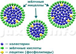 В жёлчи нормального состава жёлчные кислоты и фосфолипиды упаковывают холестерин в надмолекулярные структуры - мицеллы, препятствуя его кристаллизации