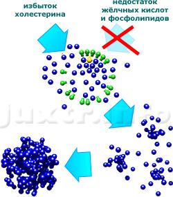 При избытке холестерина или при недостатке жёлчных кислот и фосфолипидов для построения оболочки мицелл происходит его кристаллизация