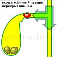 вход в жёлчный пузырь перекрыт камнем