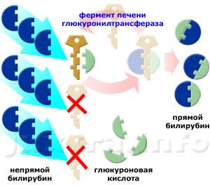 Патогенетический механизм синдрома Жильбера: низкая активность глюкуронилтрансферазы приводит к нарушению трансформации непрямого билирубина в прямой и его задержке в организме