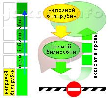 Схема 2. Повышенный прямой билирубин. Причина — сдавление внепеченочных желчных протоков