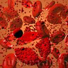 Массовое разрушение этитроцитов крови (гемолиз) приводит к высвобождению большого количества гемоглобина