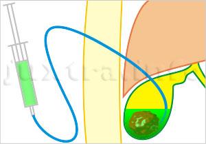 Химическое растворение камней в жёлчном пузыре