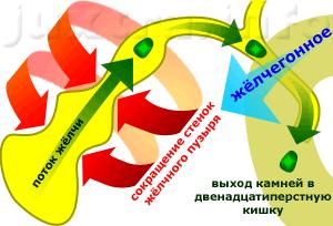 поток желчи при стимуляции сокращения жёлчного пузыря уносит камни в жёлчные протоки