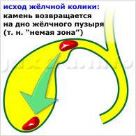 исход жёлчной колики: камень возвращается на дно жёлчного пузыря (т. н. немая зона)