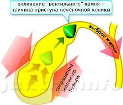 Как определить состав камней в желчном пузыре