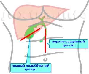 хирургические доступы для открытой холецистэктомии