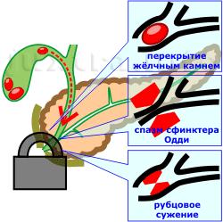 причины затруднения оттока панкреатического сока из поджелудочной железы